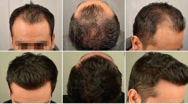پروتز مو چیست و چگونه انجام می گردد؟